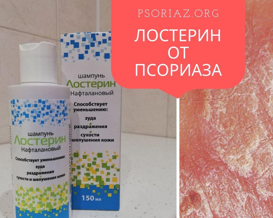 Лечение Псориаза Головы Диетой. Диета при псориазе волосистой части головы, которая поможет отсрочить рецидив болезни