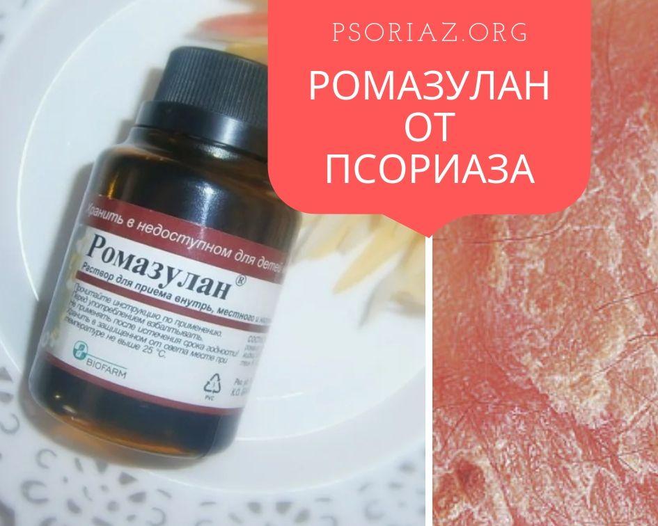 Ромазулан от псориаза